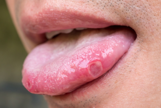 तोंड येणे-TONGUE ULCER-MOUTH ULCER-TREATMENT