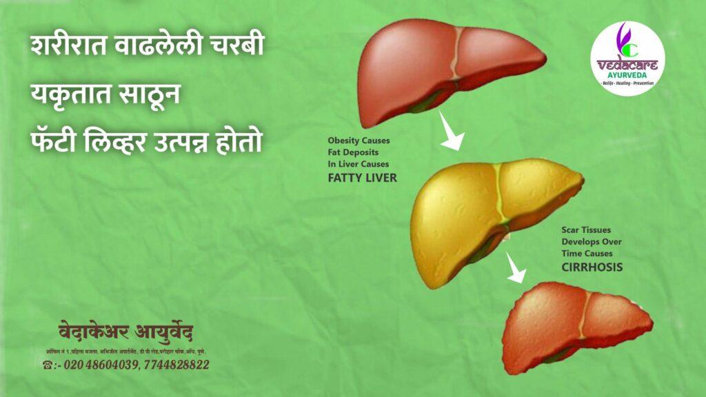 ayurvedic-medicine-for-fatty-liver
