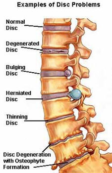 ayurvedic treatment for spinal cord injury
