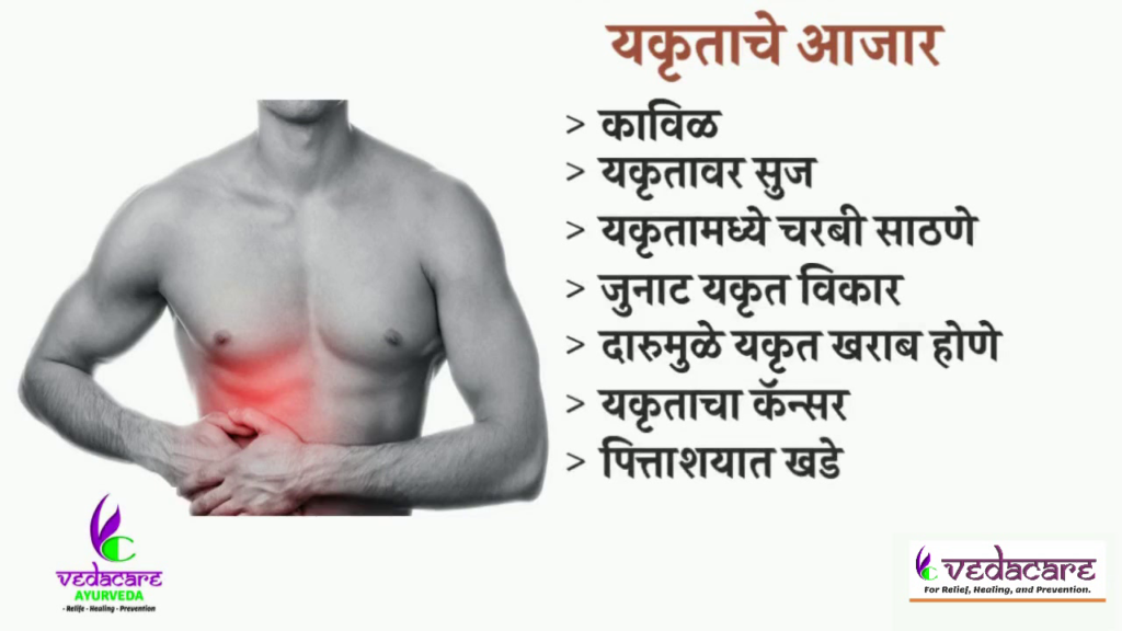 ayurvedic-treatment-Liver-Diseases